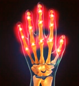 articles-may-month-arthritis